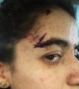 Heridas del accidente